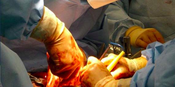 PankreasOperationKopie-1
