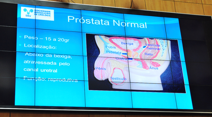Prostata_Urologen_Brasilien