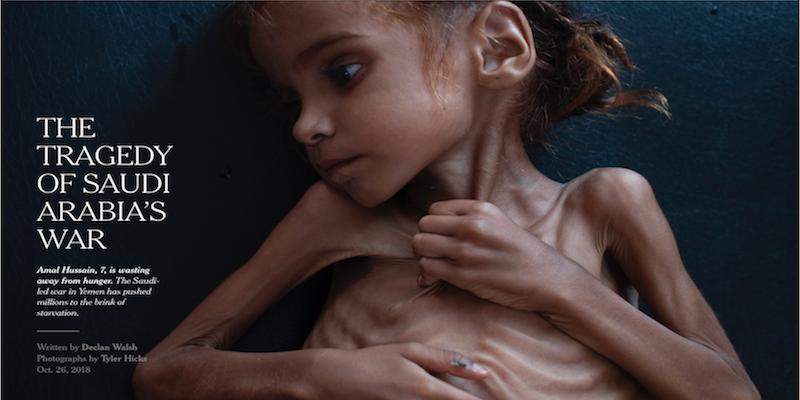 Jemen_Hunger_NYT_Front