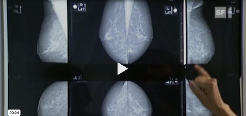 Mammografie-Bilder