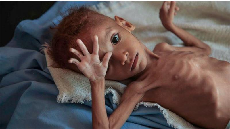 Opfer des Krieges in Yemen