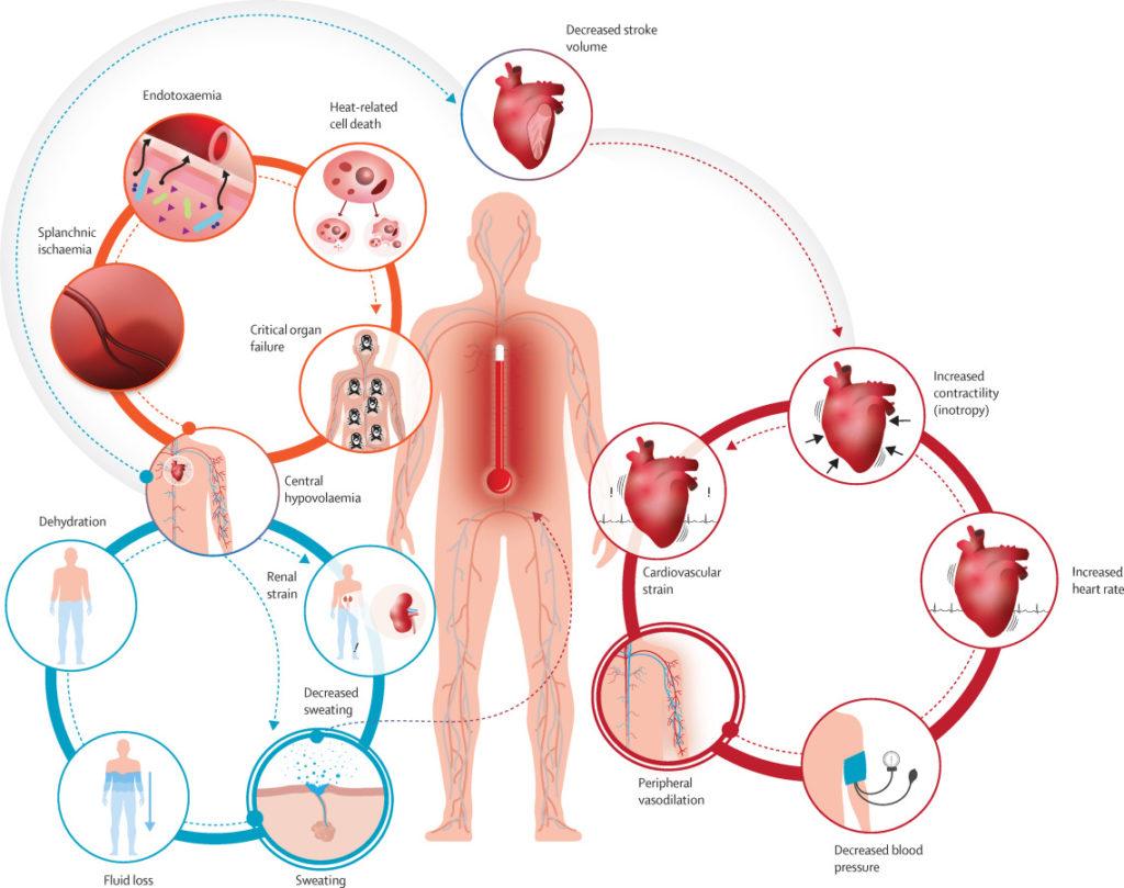 Lancet-Koerperreaktion-Hitze