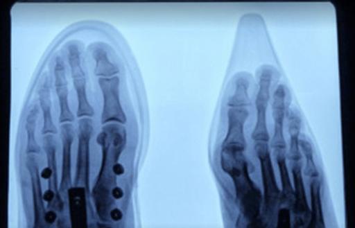 Pedoskop Röntgenbild Wo Schuh drückt. Wikimedia